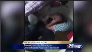 Andrew Wheeler  Beats 16 year old  autistic Aaron Hill at party   #justiceforaaron