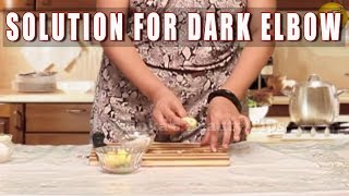 Solution for dark Elbow Thumbnail