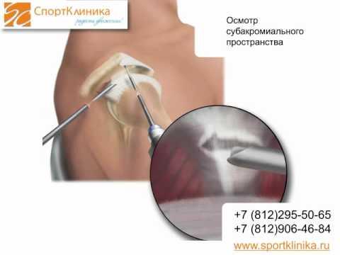 Артроскопическая субакромиальная декомпрессия правого плечевого сустава мазь мышц и суставов цена