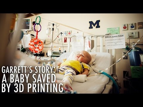3D printed devices save baby's life at University of Michigan's C.S. Mott Children's Hospital