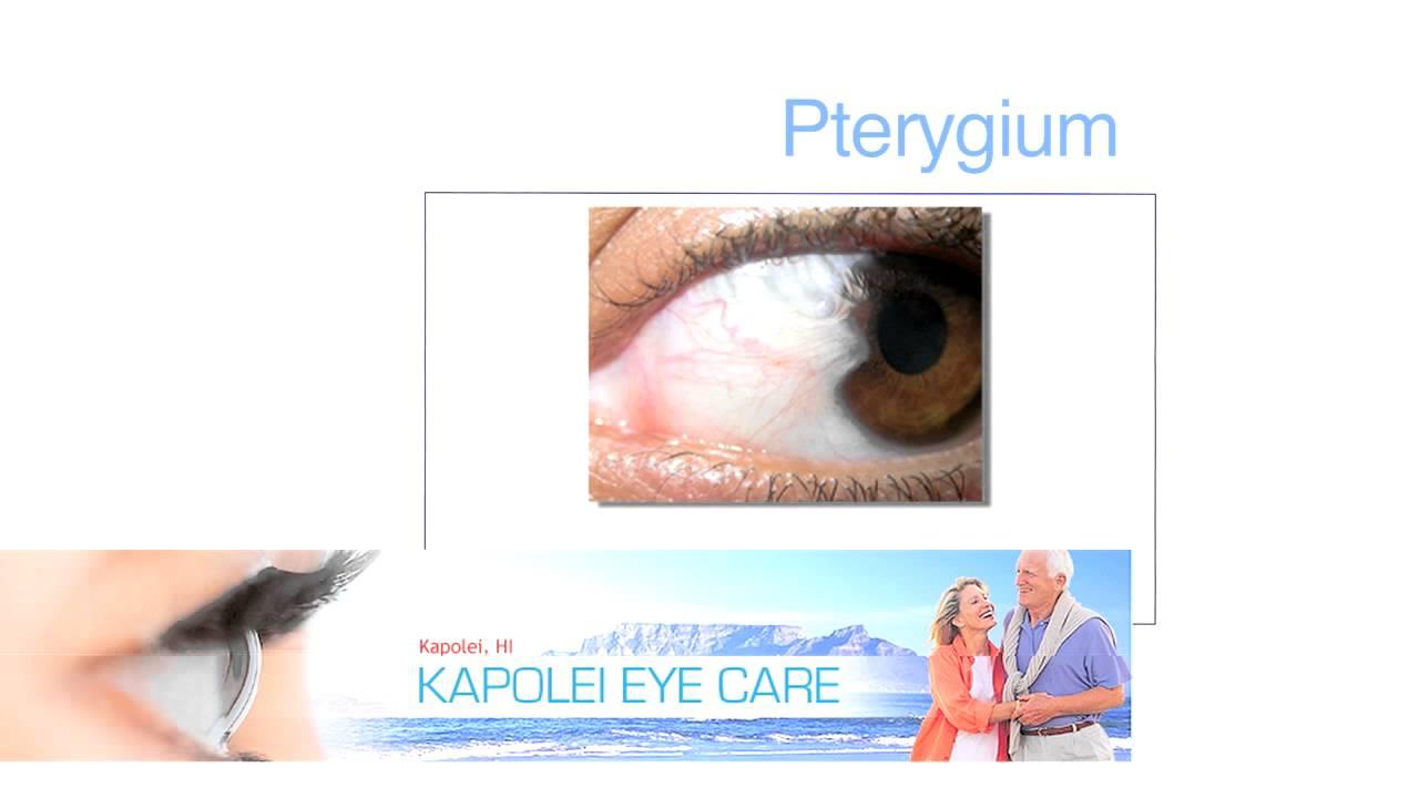 Pterygium - YouTube