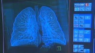 видео Сухой кашель у взрослого: причины и лечение