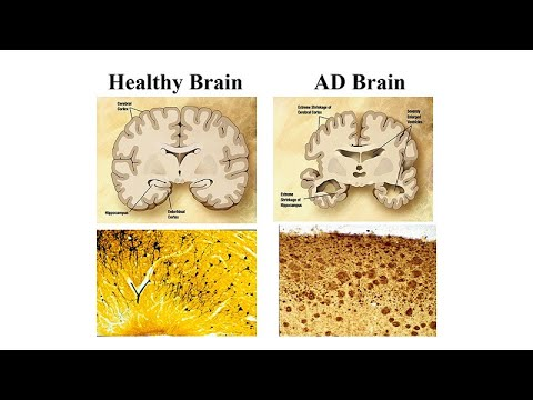 Neurological Issues in Down Syndrome and Aging