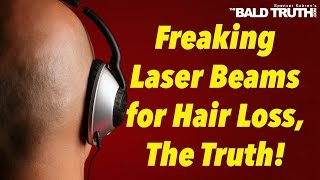 Laser Caps Laser Helmets for Hair Loss -The Bald Truth, Friday May 10th, 2019