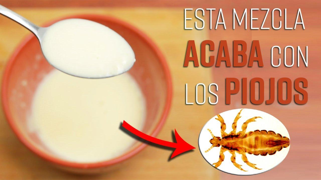 Esta Mezcla De 3 Ingredientes Elimina Los Piojos y Las Liendres, No Volverán a Ser Un Problema