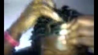 Serious flakey scalp wit locs help me