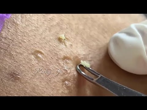 how-to-remove-blackheads-||-by-easy-removal