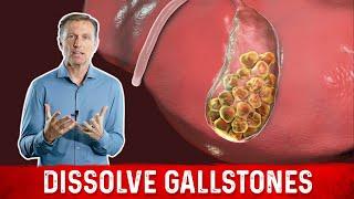 How to Dissolve Gallstones