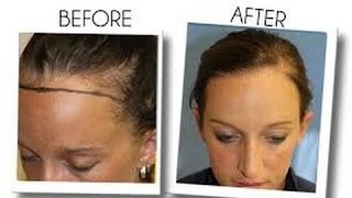 Best Hair Loss Products-Most Effective Hair Loss Treatments-Provillus vs Rogaine