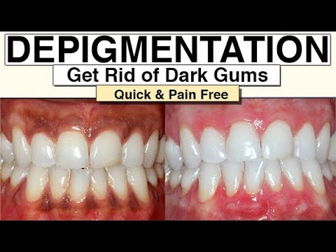 Black Gums (How To Get Rid Of Them With Gum Depigmentation)