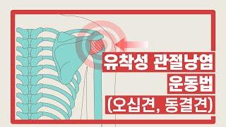 [서울성모병원] 오십견(유착성 관절낭염) 운동법
