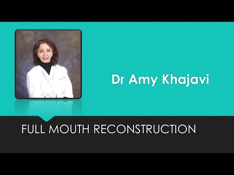 Extraction of premolar and cyst, membrane placement and bone graft by Dr Amy Khajavi
