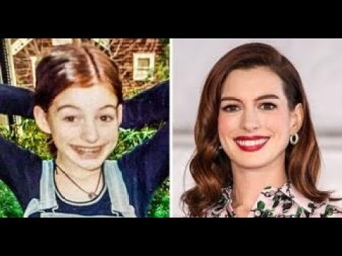 Image result for 9 Famous Beauties That Used to Be Ugly Ducklings and Became Idols for Millions