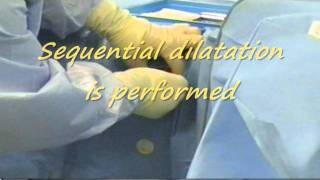 Female Urethral Dilatation under General Anaesthesia.wmv