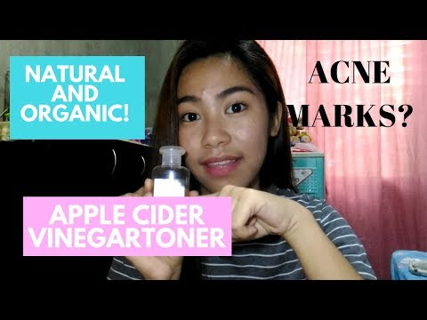 apple-cider-vinegar-toner-(goodbye-pimple-and-acne-marks!!)|-philippines|-chantal-louise