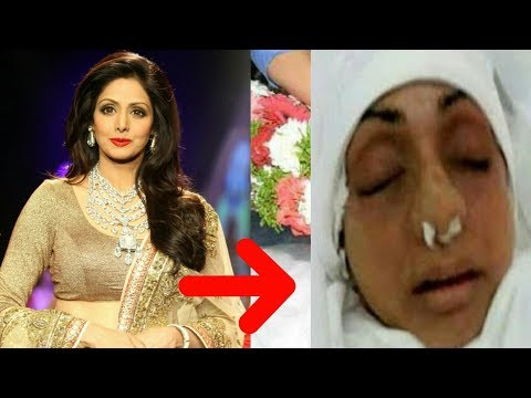 Shocking! SRIDEVI Kapoor Passed Away On 25th February​ | How Sridevi Died
