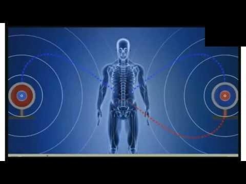 Breast Cancer Eliminated  using Keske Technologies (Demo) – by Dr. Rodrigo Vildosola