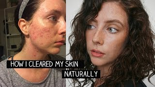natural skin care routine // how i cured my acne // mostly plastic free (updated)