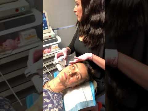 Ultherapy NYC, Dr. Halaas