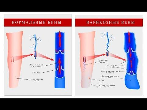 Флебэктомия - операция по удалению варикозных вен