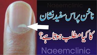 Sufaid Nakhnon Ka Matlab,White Spots On Nails Ka Matlab In Urdu,Naeemclinic Nakhnon Ka Bary Min Tips
