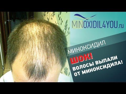 Миноксидил для волос.