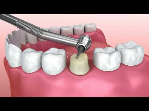 Crowns, Bridge and Dentures - See the Experts at 123 Dental