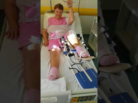 operatie gonartroza)