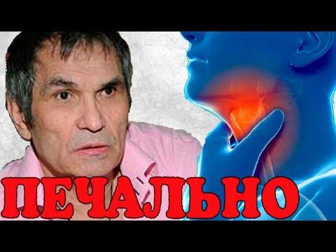 Бари Алибасов никогда не сможет говорить!  Сгорело все!