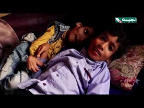 ثلاثة أطفال معاقين ومعيلهم في حالة نفسية يصارعون الفقر والمرض