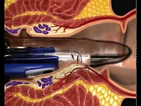 Тромбэктомия геморроидального узла - операция по удалению