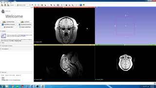 3D Slicer - Tutorial Videos