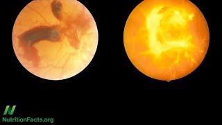 Může se diabetická retinopatie vyléčit?