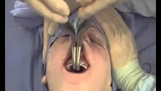 видео Видео Что такое остеотомия