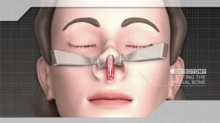 РИНОПЛАСТИКА. Коррекция формы носа.