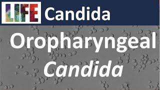 Oral Candidiasis - Natural Ayurvedic Home Remedies.