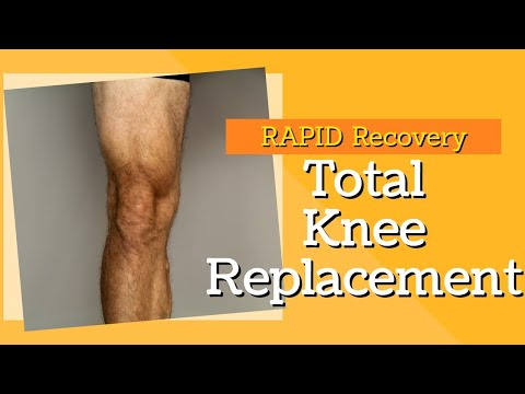 2 Key Exercises to Rapid Recovery for Total Knee Replacement