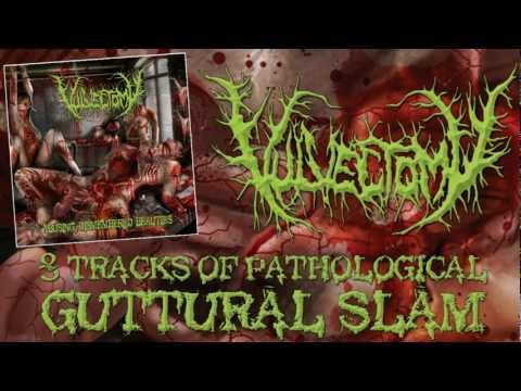 VULVECTOMY -