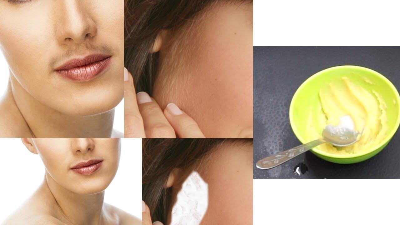 Facial hair removal austin texas 12