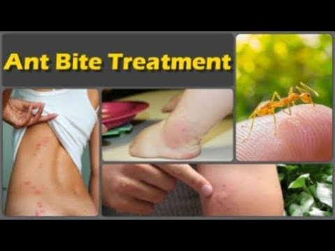 How To Get Rid Of Ant Bite And Top 10 Natural Home Remedies For Ant Bites