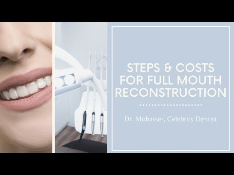 Full Mouth Reconstruction Dentist Procedure Los Angeles