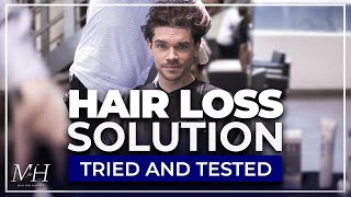 A Treatment To Prevent Hair Loss |  I Tried Scalp Dermabrasion | Thicker Hair