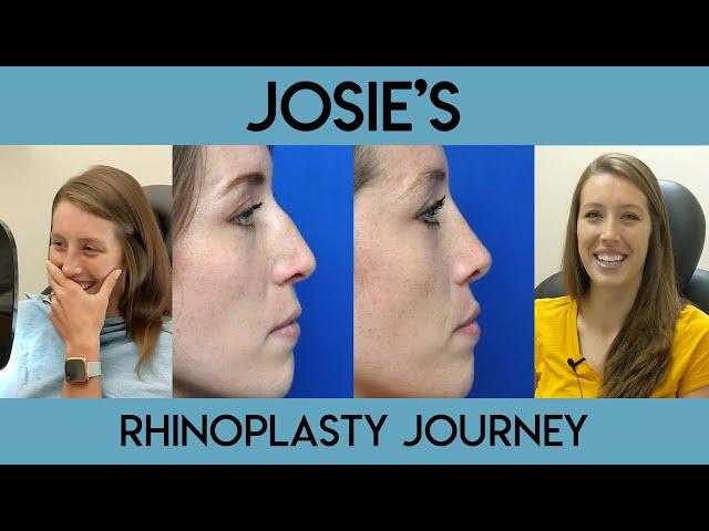 Josie's Rhinoplasty Journey