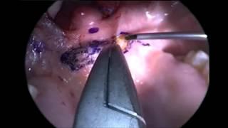 Horlama Ve Apne Ameliyat Uvulopalatofaringoplasti