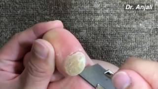 Removal Giant, Calluses on Toes At Home **
