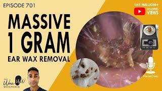 701 - Massive 1 Gram Ear Wax Removal