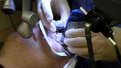 LASIK Live Surgery