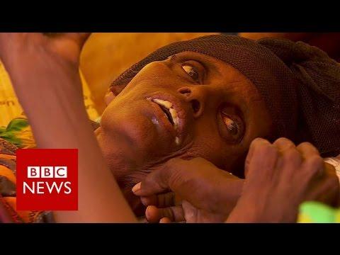 Somalia famine: Cholera outbreak  - BBC News