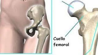 Nhsd femoral disfunción nervio del