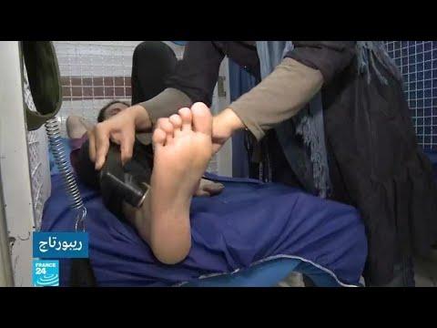 الهيموفيليا.. مرض يتربص بنحو 12 ألف مصاب إيراني في ظل العقوبات الأمريكية  - نشر قبل 52 دقيقة